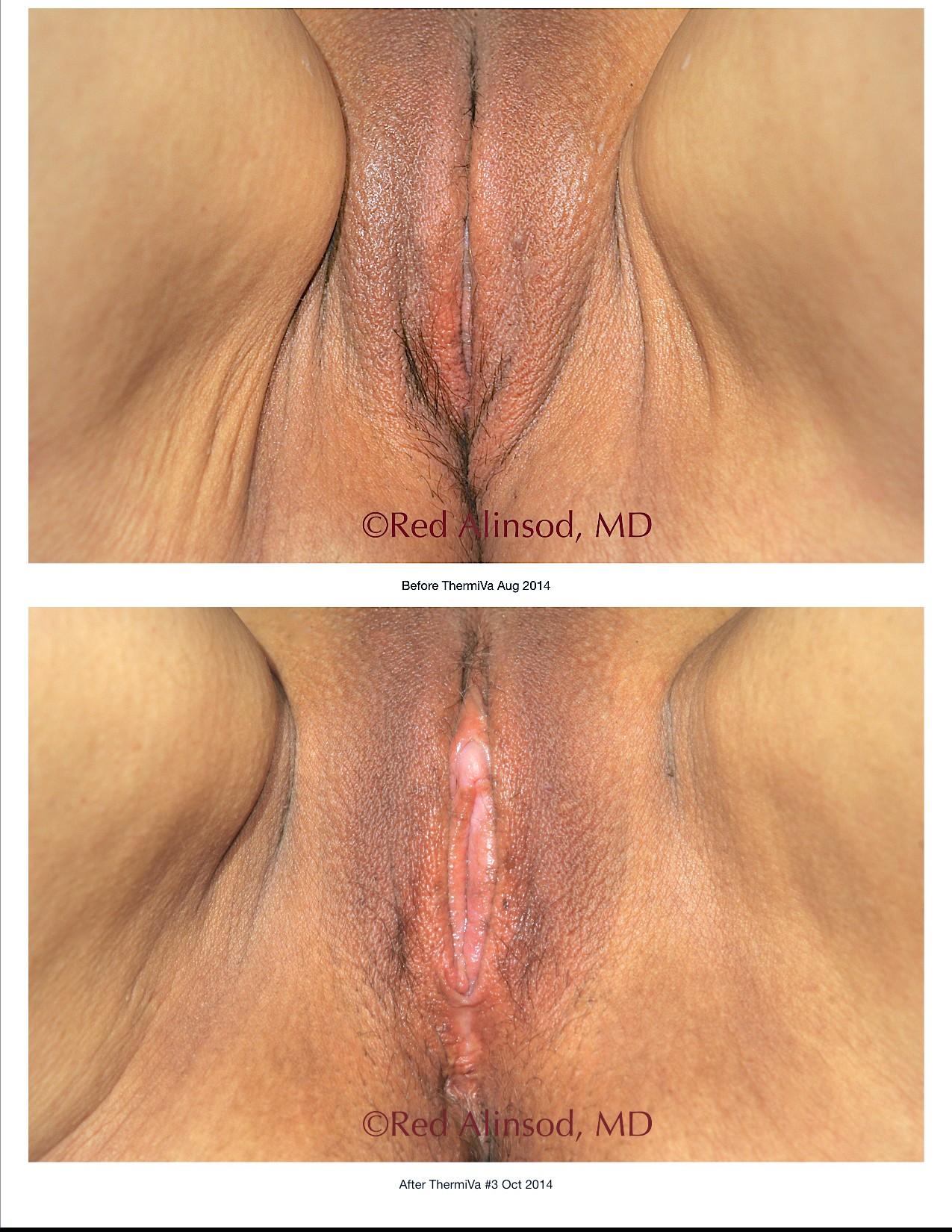 Laser vaginal rejuvenation phoenix